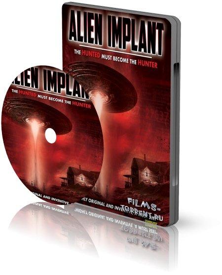 Инопланетный имплантат (2017)